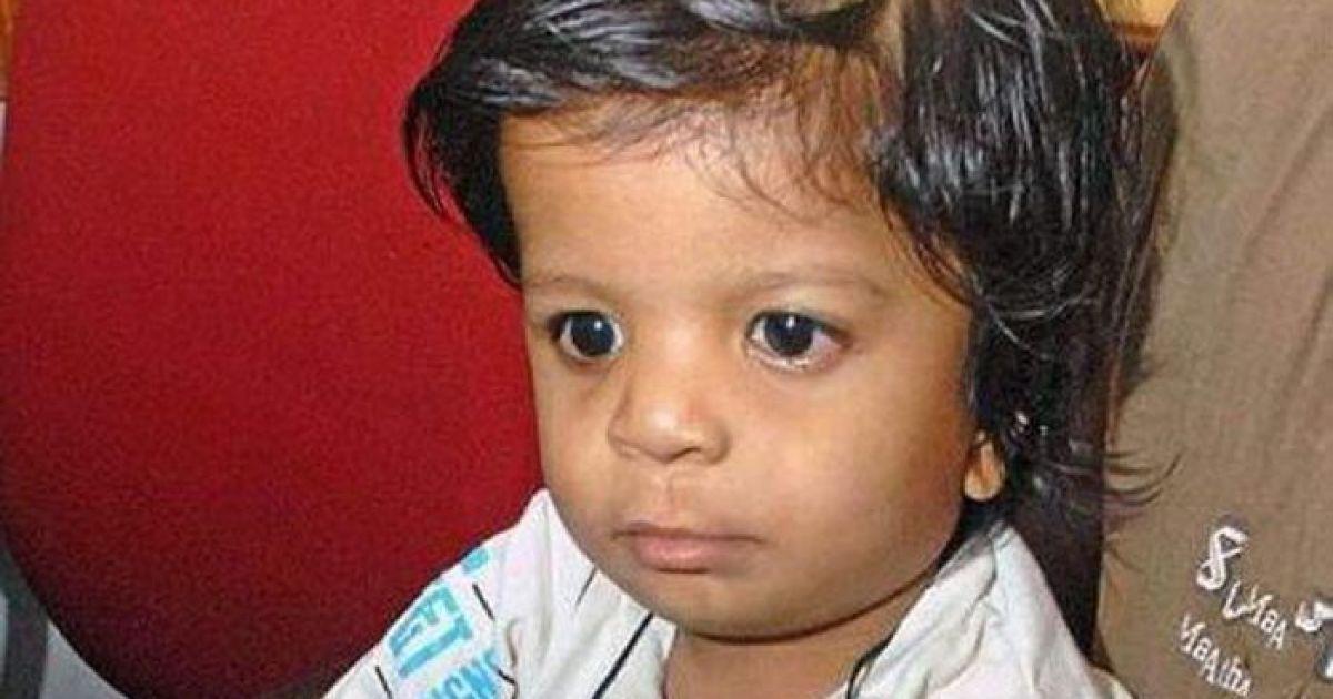 Хлопчик народився з 34 пальцями @ skuky.net
