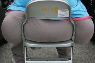400-кілограмовому мерцеві проведуть ліпосакцію