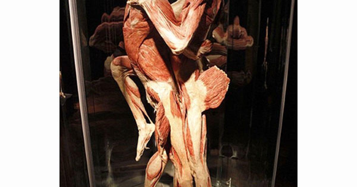 Виставка демонструє вплив на людське тіло шкідливих звичок, образу життя і захворювань. @ AFP
