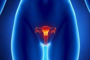 Доброкачественные опухоли яичников: диагностика, лечение