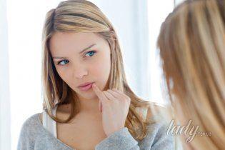 Как бороться с герпесом на губах
