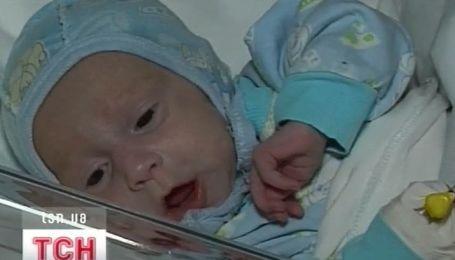 В закарпатском Мукачево медики спасают жизнь полуторамесячным двойняшкам