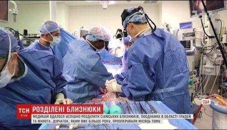 В американском Хьюстоне хирургам удалось разделить сиамских близнецов