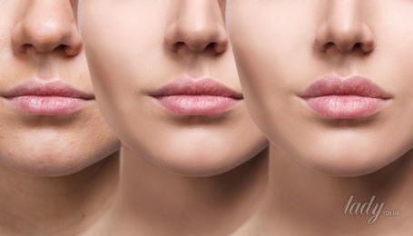 Как восстановить уставшую кожу