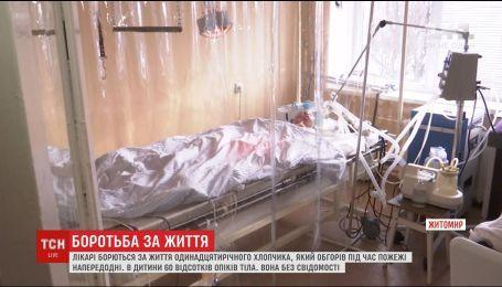 Лікарі борються за життя 11-річного Святослава, який отримав 60% опіків тіла