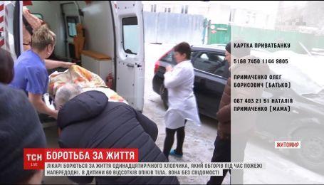 Лікарі розповіли про стан хлопчика, який обгорів під час пожежі на Житомирщині