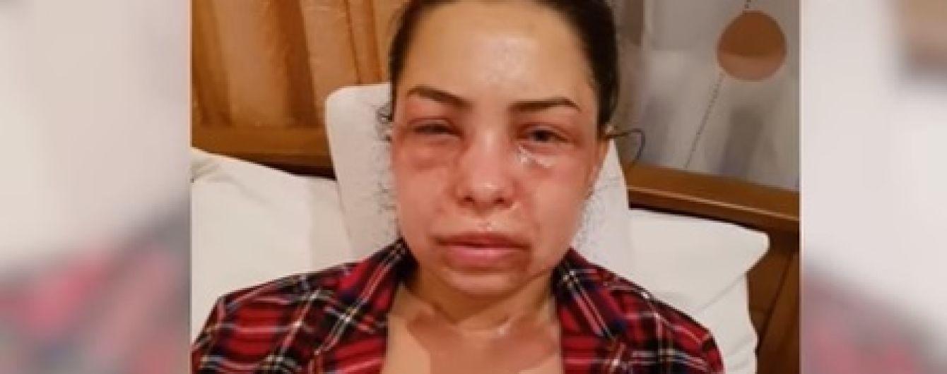 Врачи спасают зрение жены французского режиссера, которую в Днепре облили кислотой