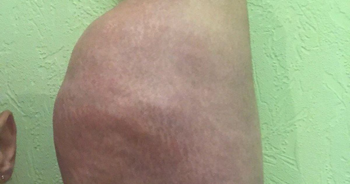 Терешин жалуется на боль и температуру @ vk.com/slacker26rus