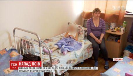 На Одещині безпритульні пси покусали шестирічну дівчинку