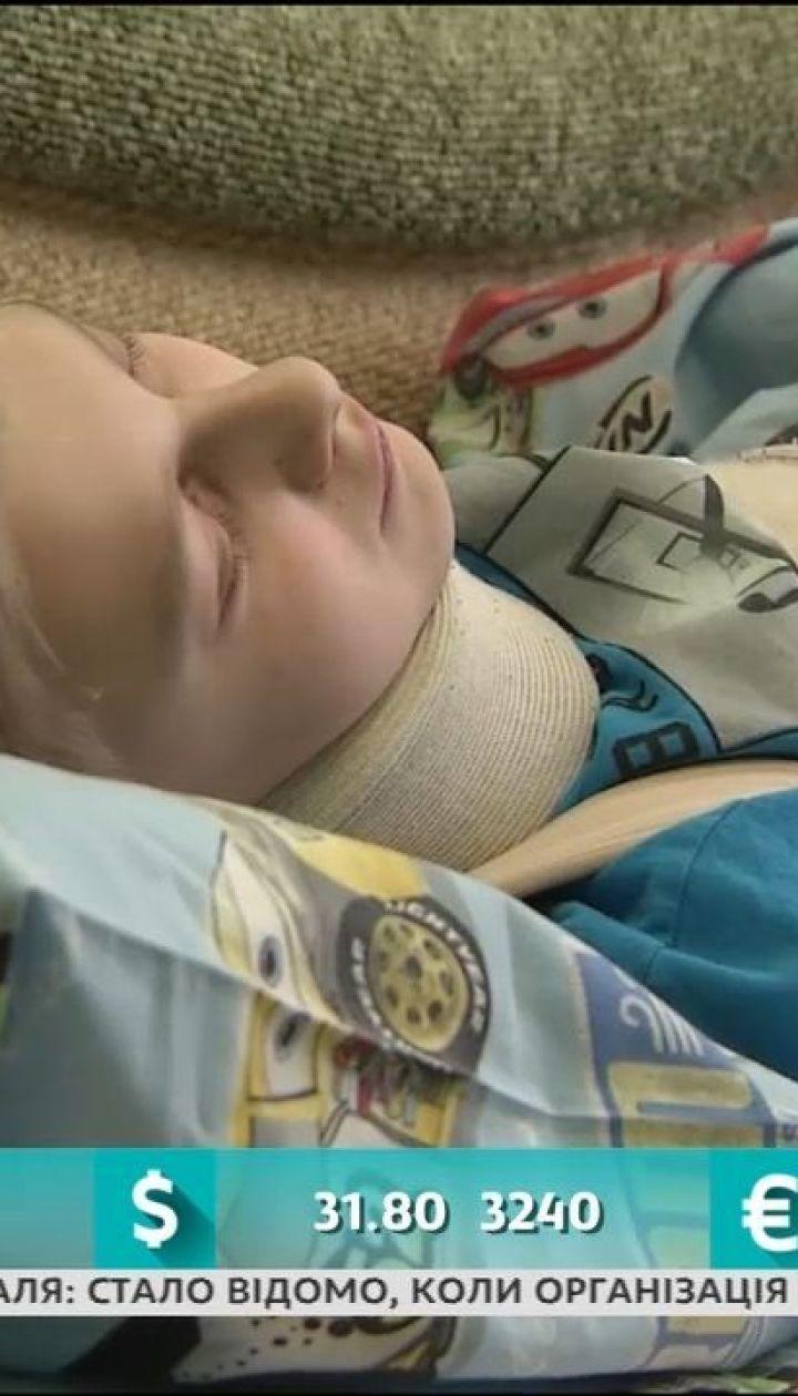 Українці обурені історією семикласника Максима, якого скалічили його однокласники