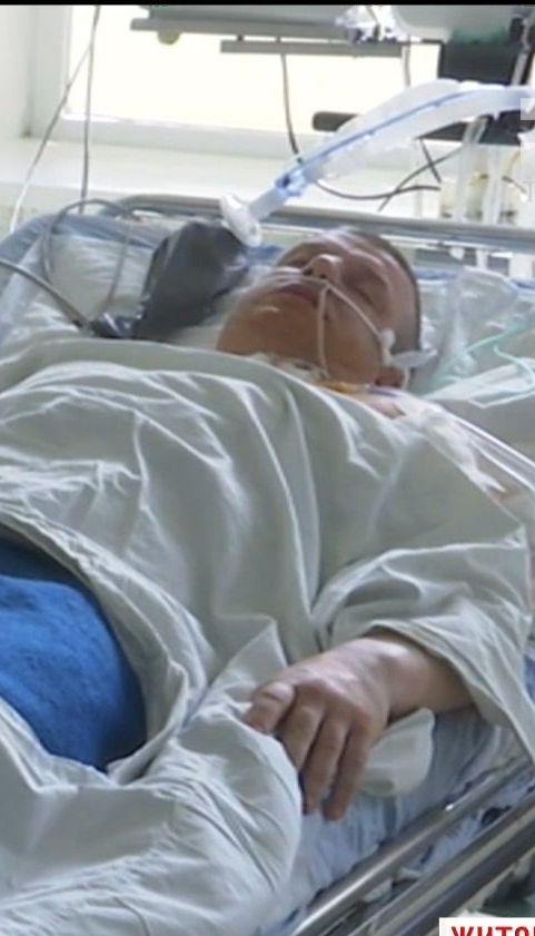 На Житомирщині депутат дивом вижив після обстрілу невідомим чоловіком