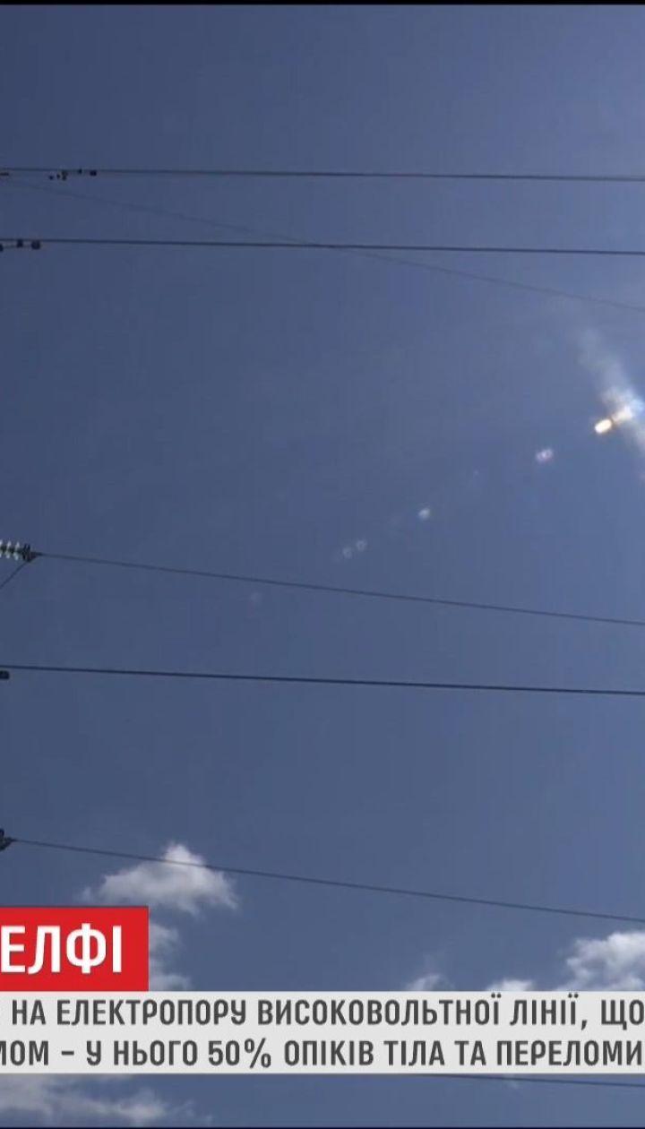 На Житомирщині лікарі борються за життя хлопця, який отримав удар струмом та впав з 10 метрів