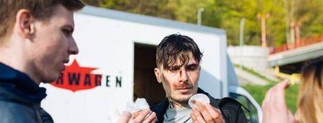 """Позитив серьезно травмировался во время съемок нового клипа """"Время и Стекло"""""""