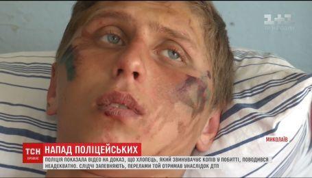 Полиция Николаева уверяет, что парень придумал историю о собственном избиении ради мести