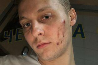 У київському ресторані побили старшого сина Шуфрича