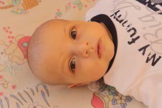 5-місячний Миколка не зможе вижити без вашої допомоги