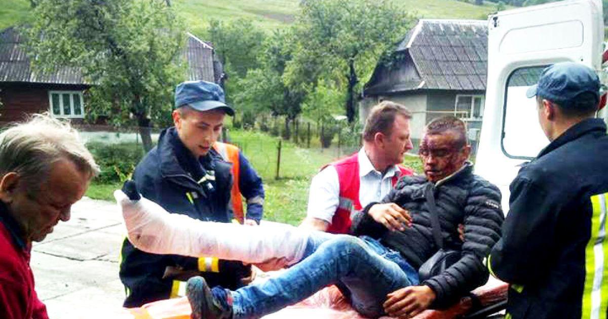 Закривавлене обличчя і нога в гіпсі. На Закарпатті хлопець випав з потяга  (3.09 16) 0c45ea7fab444