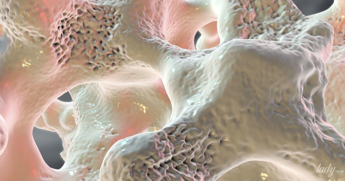 Что такое остеопороз и можно ли его избежать
