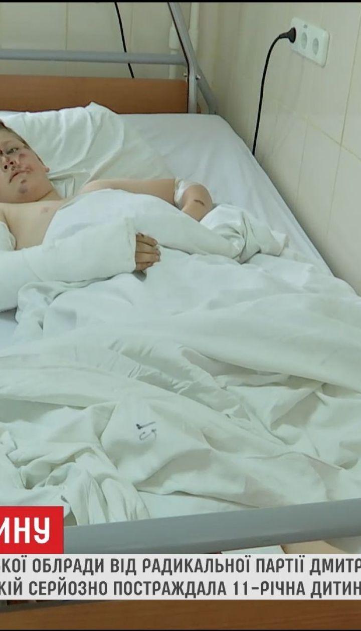 Наїзд на дитину: подробиці ДТП за участю брата депутата Чернігівської облради