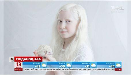 8 интересных фактов про альбиносов