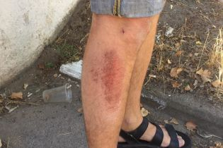 "В Херсоне неизвестные ""бородачи"" избили активиста движения ""Честно"""