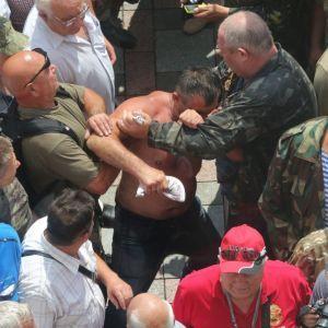 В полиции сообщили о первых пострадавших и задержанных в результате стычки под Радой