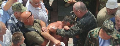 В Киеве полиция открыла дело из-за стычки под Верховной Радой
