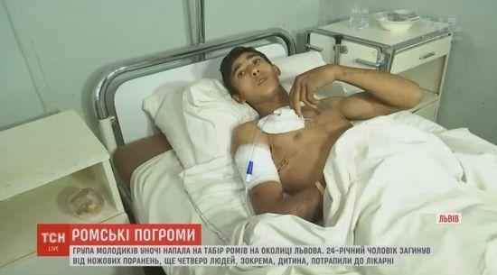Пораненого під час нападу на табір ромів у Львові виписали з лікарні
