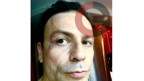 Екс-футболіст збірної Росії зацідив журналісту в обличчя