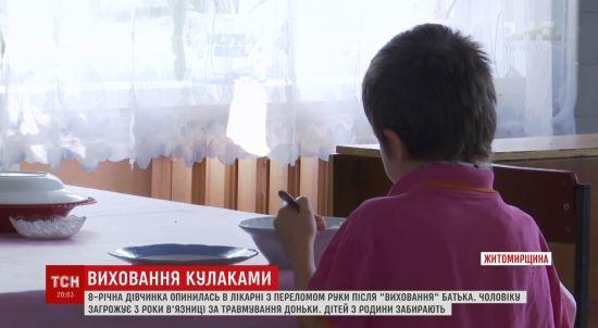 Перелом плеча і гематоми: на Житомирщині батько ледве не до інвалідності побив 8-річну доньку