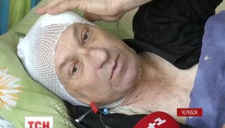 В Черкассах сосулька травмировала 53-летнего мужчину