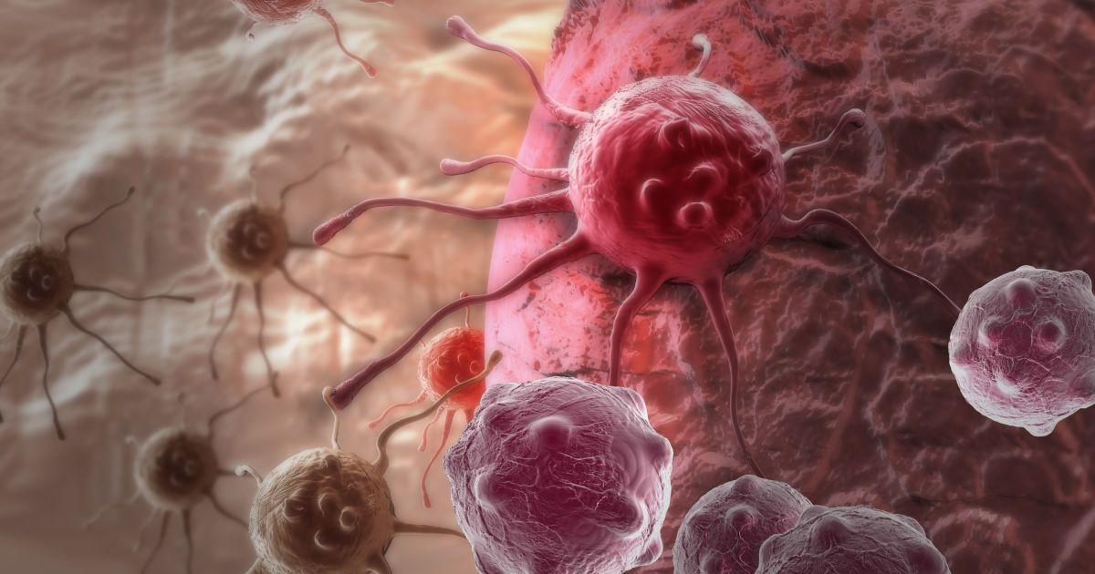 Місяць обізнаності про рак легень: медики нагадали про найсмертоносніший вид онкології