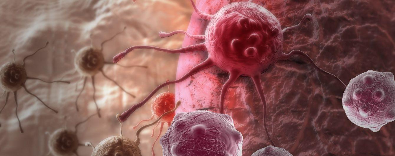 Страх рака: более миллиона украинцев имеют онкологические заболевания