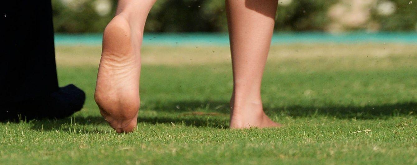 Герцогиня в опасности: ортопедов шокировали фото обнаженной ступни Кейт