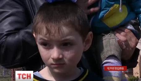 На Черниговщине пятилетний мальчик вытащил из пожара двух своих меньших братьев