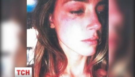Ембер Хьорд показала у суді фотографії із синцями на обличчі