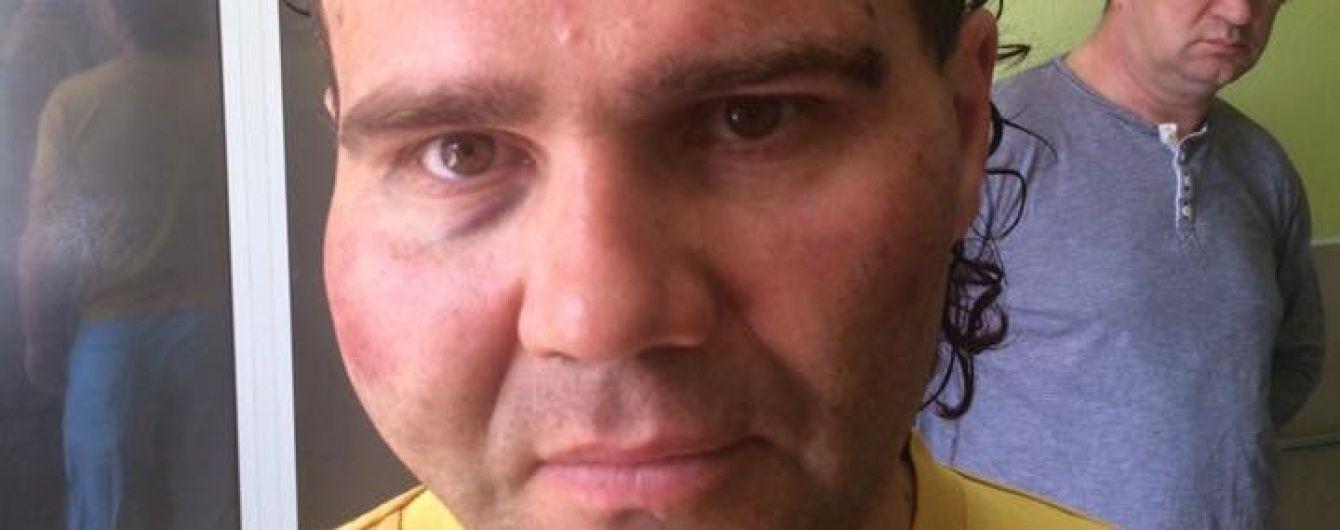 У Рівному невідомі побили депутата міськради