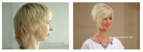 Ринопластика, до і після