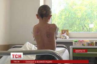 Приемная мать избила до реанимации 9-летнего мальчика-сироту