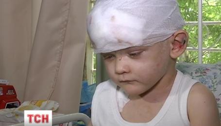 Пересадку кожи сделали мальчику, которого нашли в Одессе