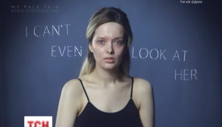 Флешмоб в поддержку людей с больной кожей превратился в сетевое кокетство