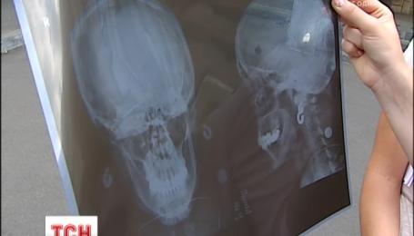 """В аэропорту """"Борисполь"""" женщине на голову упала гранитная плитка"""