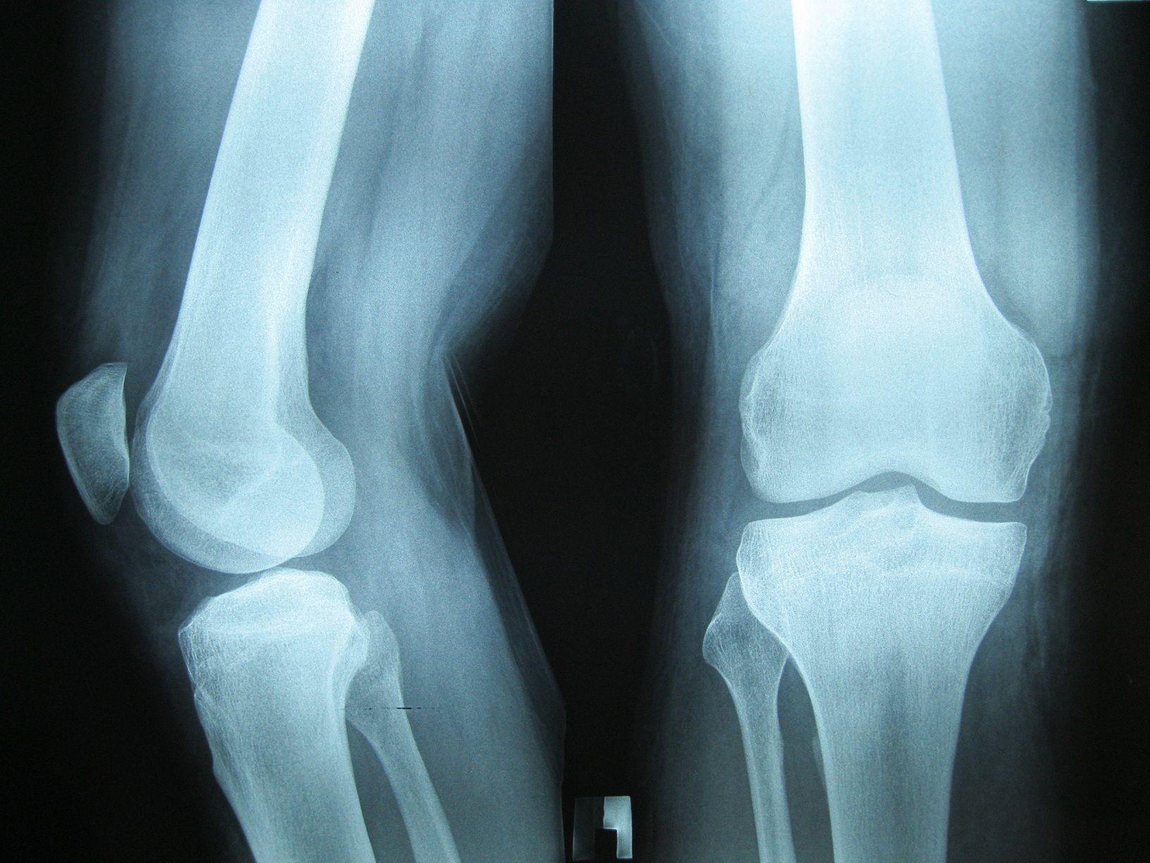 Рентген нога