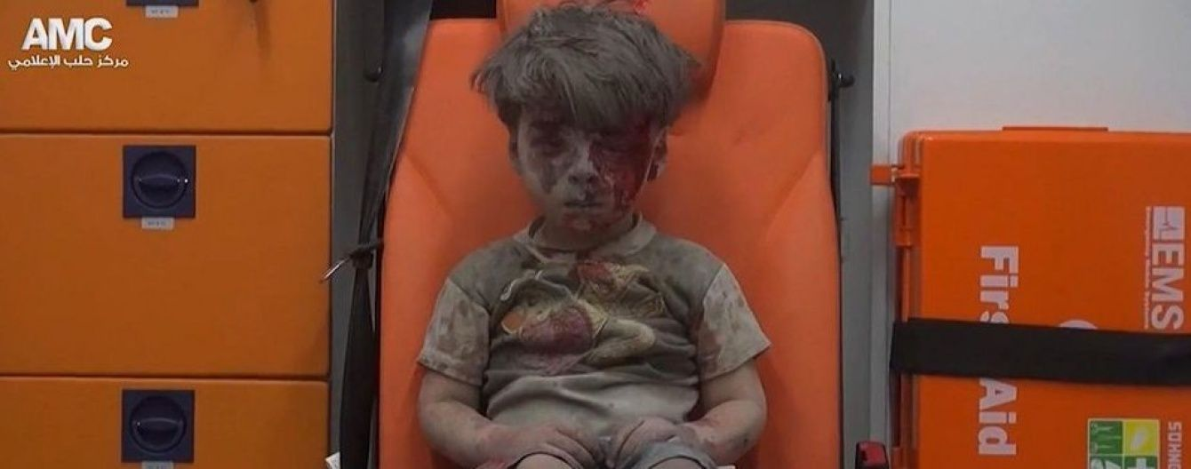 Укритий пилюкою і залитий кров'ю: мережу полонило фото хлопчика, що вижив після авіаударів у Сирії