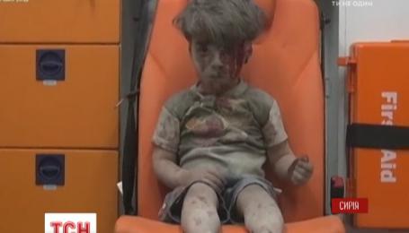 Відео із врятованим після авіаударів п'ятирічним сирійським хлопчиком сколихнуло Мережу