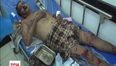 Коалиция нанесла авиаудар по Йемену: около сотни человек пострадали