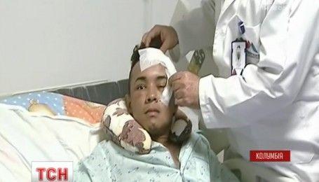 Колумбієць вижив із ножем в оці і навіть не втратив зір