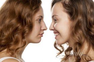 Ринопластика: что важно знать о коррекции формы носа