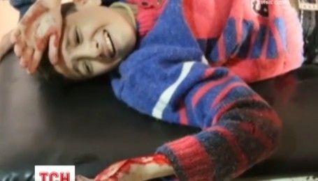 У Сирії рятувальники показали жахливі наслідки бомбардування Алеппо: постраждали діти