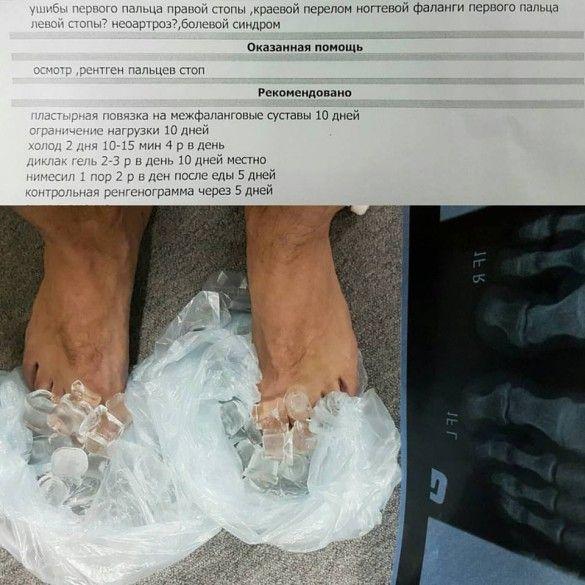 Ноги Дмитра Комарова